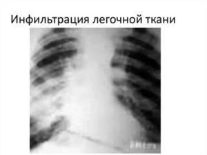 Синдром инфильтрации легочной ткани