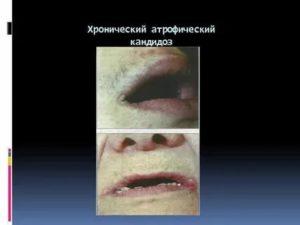 Атрофический кандидоз полости рта