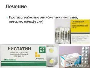 Нистатин при кандидозе полости рта