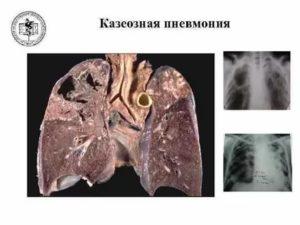 Казеозная пневмония фото