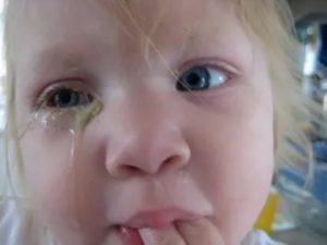 Зеленые сопли и коньюктивит у ребенка