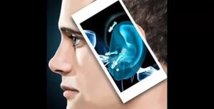 Рентген уха