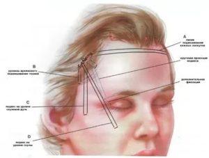 Болит голова над левой бровью