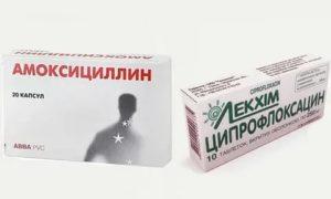 Ципрофлоксацин или амоксиклав