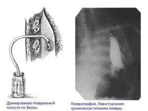Дренирование плевральной полости при пневмотораксе