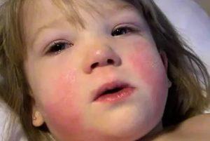 Сыпь при мононуклеозе у взрослых