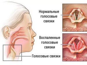 Несмыкание связок симптомы
