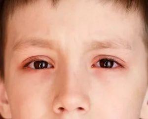 У ребенка болят глаза причины