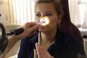 Радиоволновая коагуляция нижних носовых раковин