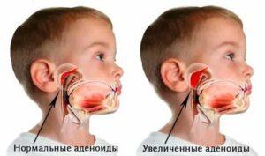 Аллергический аденоидит у детей симптомы