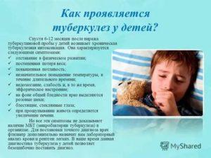 Признаки туберкулеза у детей до года