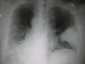 Повторный рентген при пневмонии