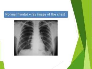 Рентгенограмма легких в норме