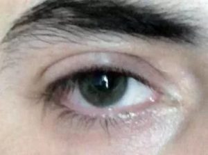 Почему в уголках глаз появляются белые выделения