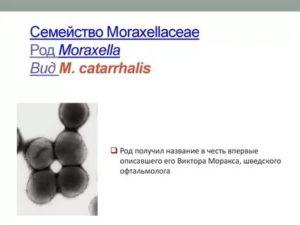 Branhamella catarrhalis в носу у ребенка