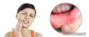 Почему долго болит горло и не проходит