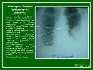 Описание рентгеновских снимков