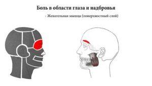 Болит голова в области бровей