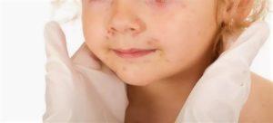 Сыпь при инфекционном мононуклеозе у детей фото