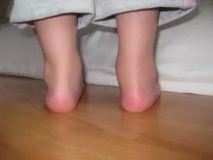 У ребенка температура и болят ноги