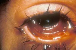При сморкании из глаза идет жидкость