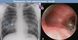 Инородное тело в бронхах симптомы
