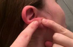 Шишка на мочке уха сзади
