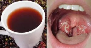 Красные сосуды в горле