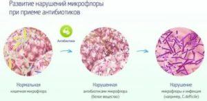 Кровотечение при приеме антибиотиков