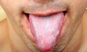 Стафилококк на языке