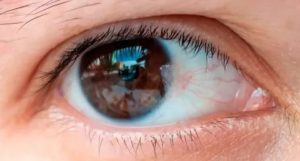 Белый налет на глазах у человека