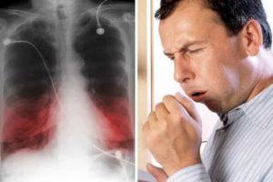 Проблемы с легкими симптомы