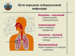 Основной путь передачи туберкулеза