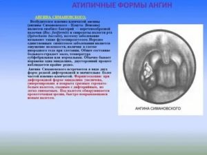 Ангина возбудитель заболевания