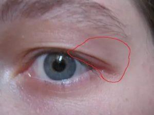 Болит кость над глазом под бровью