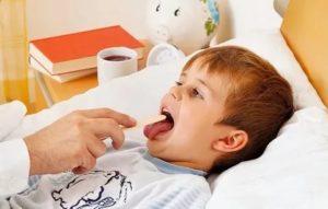 Ребенок часто болеет ангиной что делать