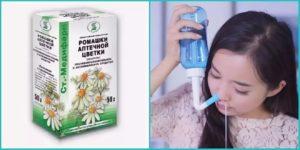 Можно ли промывать нос ромашкой ребенку