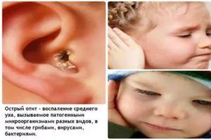 Неприятный запах из уха у ребенка