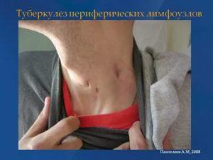 Какие лимфоузлы увеличиваются при туберкулезе
