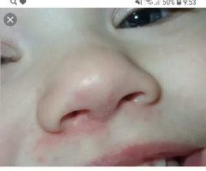 Прыщики под носом у ребенка