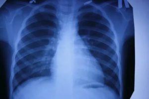 Рентгеновский снимок здоровых легких фото