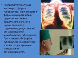 Туберкулез закрытой формы можно ли заразиться