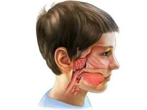 Болезни носоглотки у детей