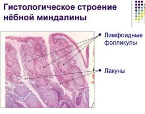 Лимфоидные фолликулы в горле фото