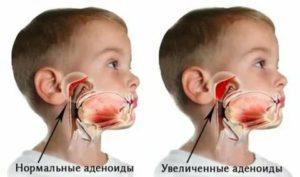 Храп при аденоидах у детей