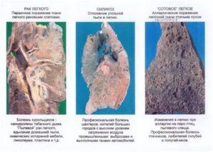 Металлическая пыль в легких