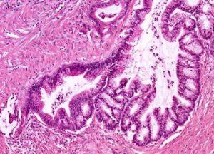 Муцинозная аденокарцинома легкого