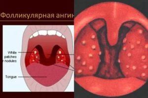 Стафилококковый тонзиллит