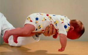 Слабость мышц у ребенка