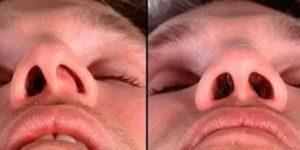 Синехии в носу после операции